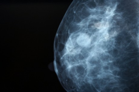 Should we be pushing mammograms?