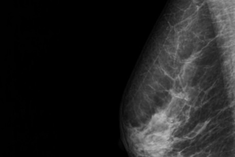 More mixed messages on mammograms