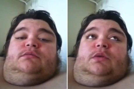 Can a viral video save an obese man?