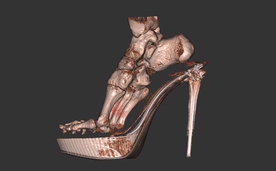 "Study: Wearing high heels causes long-term foot damage, ""clawing of the toes"""