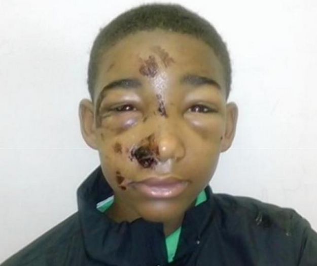 14 Year Old Brutalized By Cops In Shopliftng Arrest