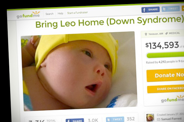 A father keeps his Down syndrome baby -- but does that make