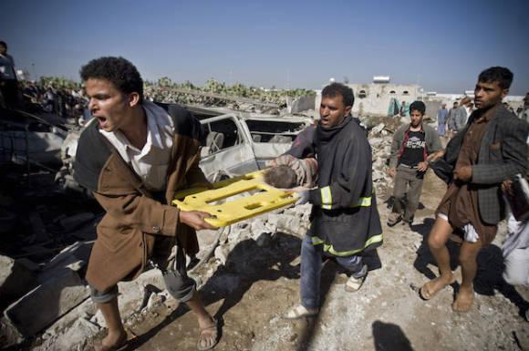 Despite 10 000 civilian casualties in yemen 13 per day for Salon yemenite
