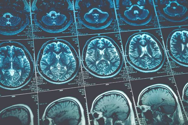 Medical racism at work? Study finds blacks, Latinos get worse care for neurological disorders