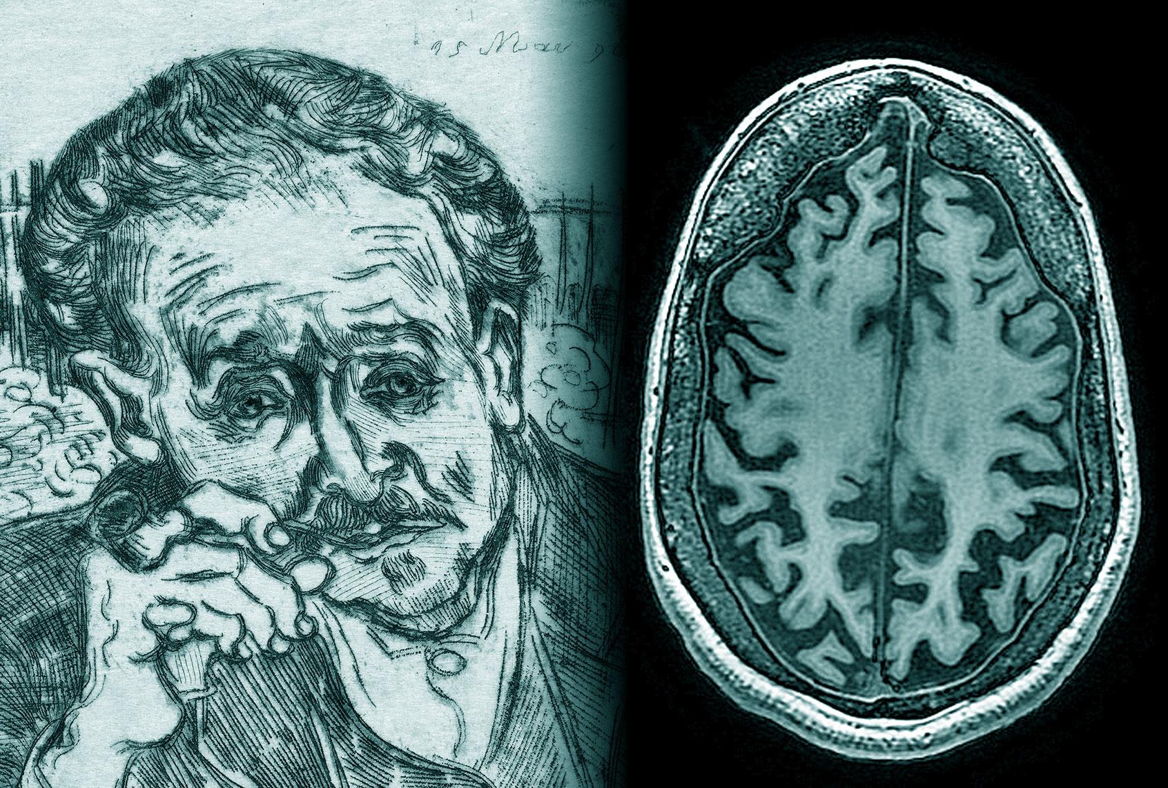 brain-scan-dr-gachet-van-gogh-etching-11