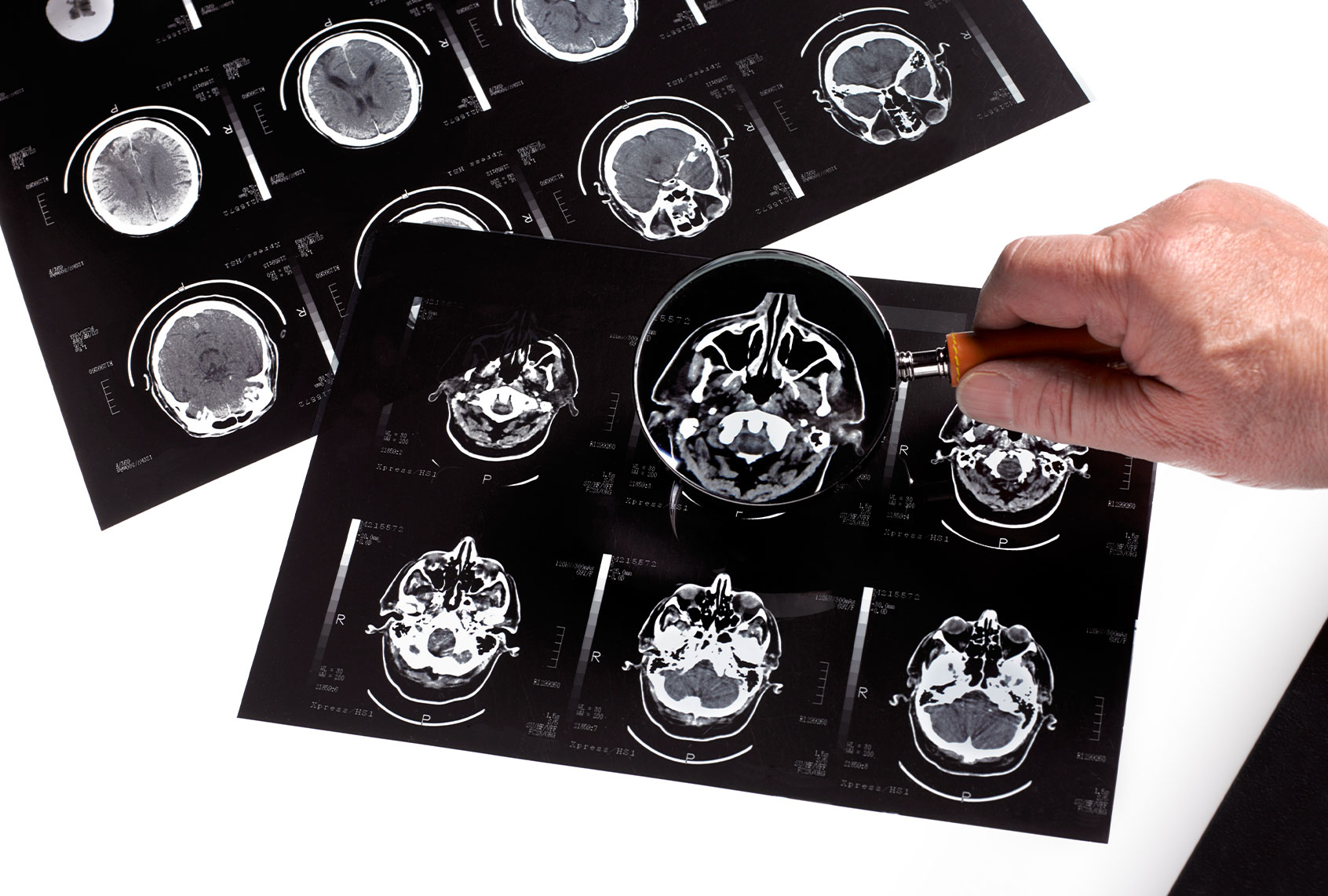 How UTIs can affect the brain thumbnail
